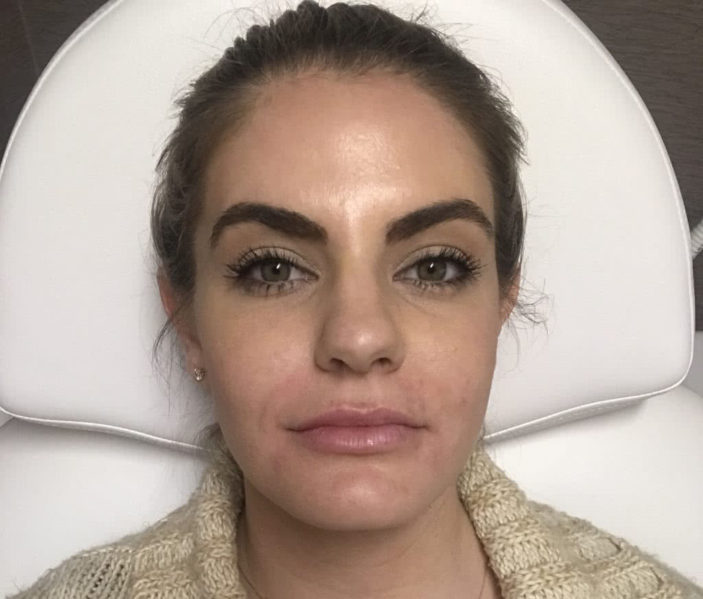 Just after my first time trying Juvederm Vollure lip filler
