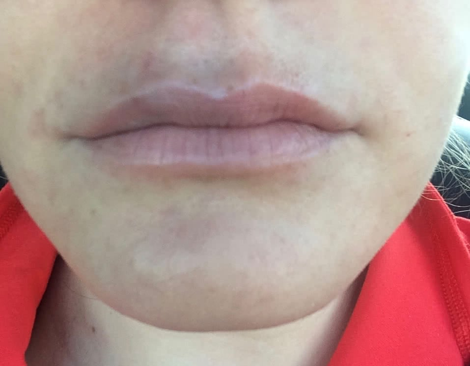 Bruising from my first lip injection treatment