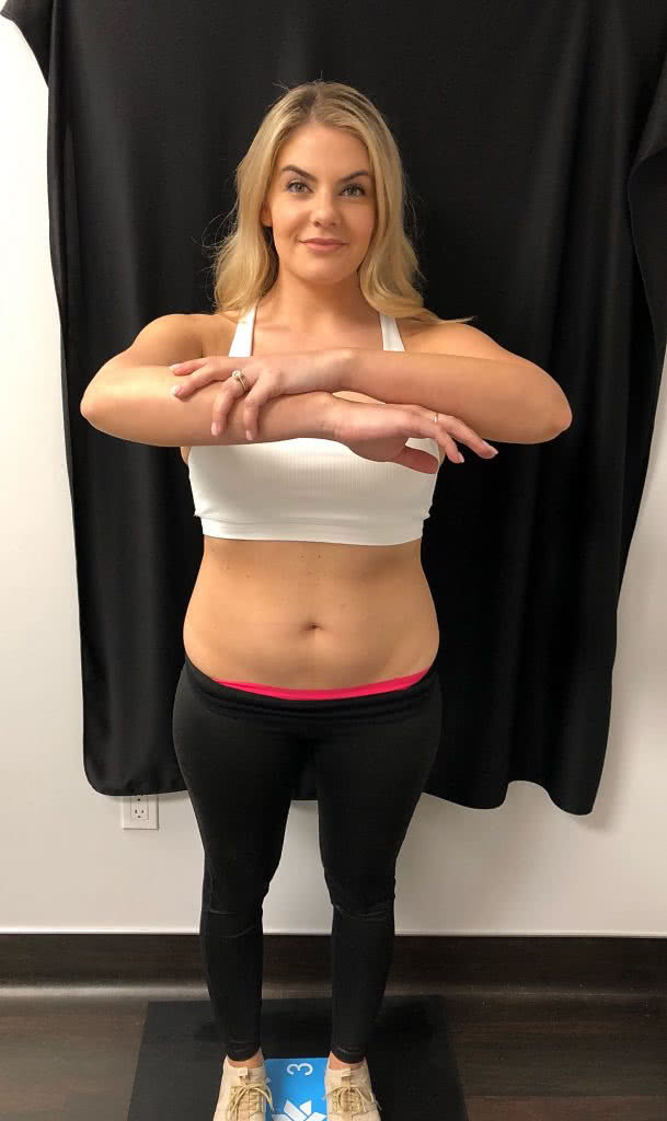 Before pictures from my Coolsculpting treatment