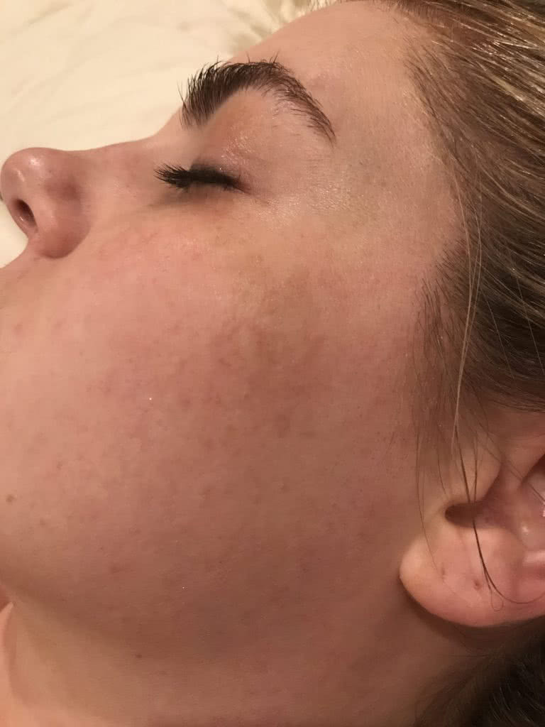 Dark spots and skin discoloration from Melasma