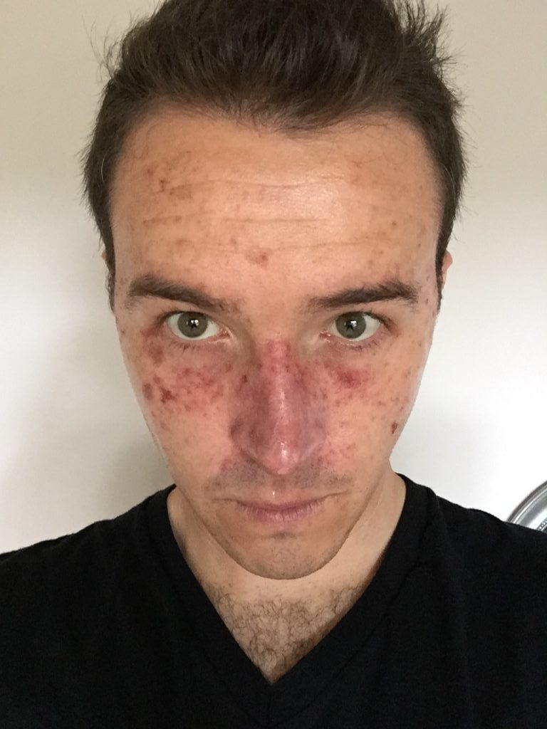 A man's skin after a Efudix treatment for skin cancer