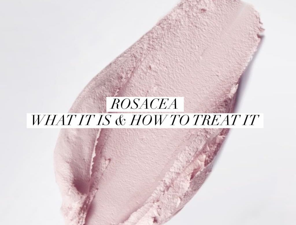 Everything You Need To Know About Rosacea And How To Treat It