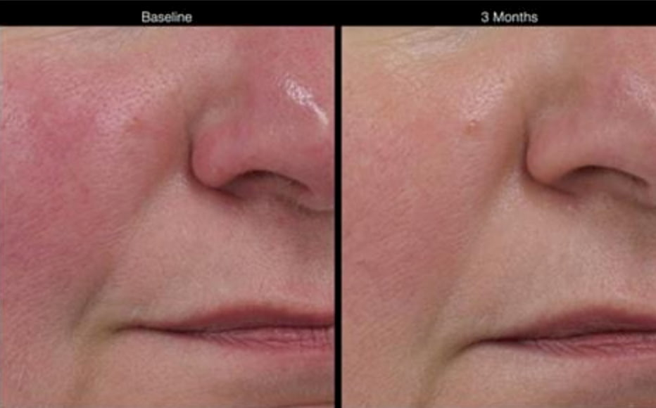 Before and after rosacea treatmenr